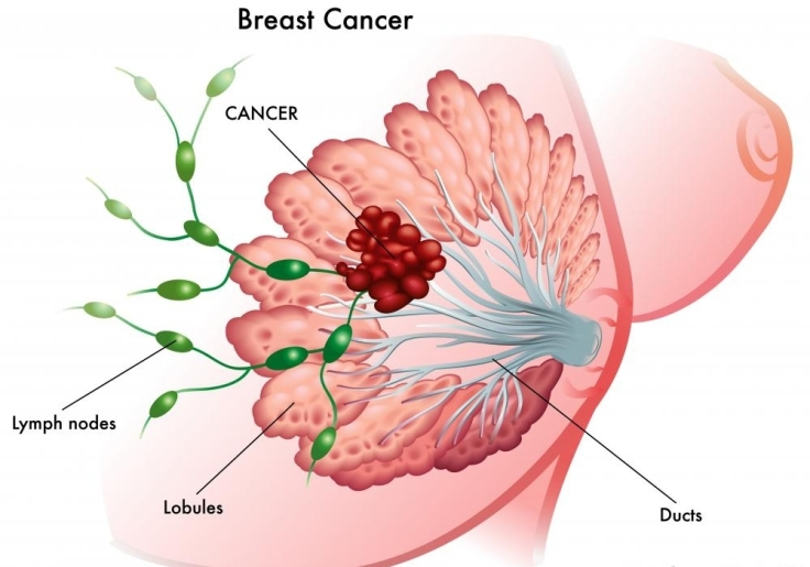 depiction-of-breast-cancer